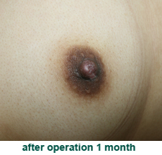 plastic_surgery_inverted_nipple_correction